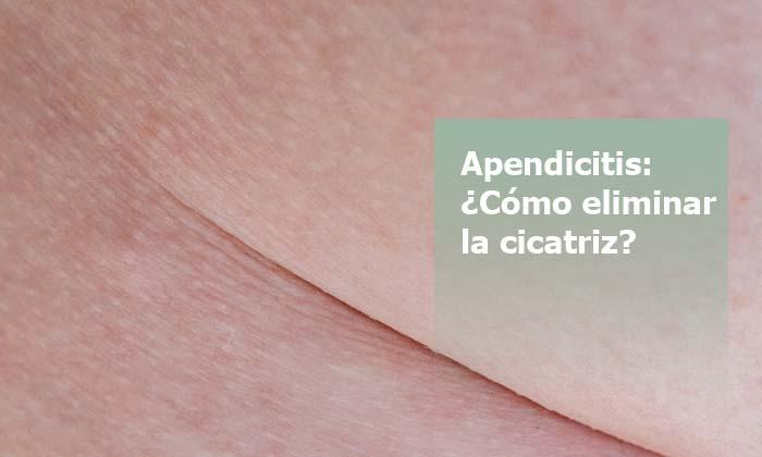 eliminar cicatriz apendicitis