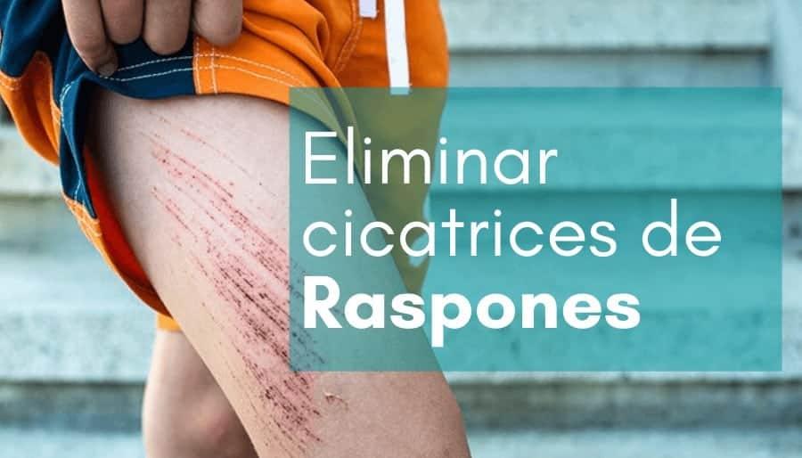 Reducir o eliminar cicatrices de raspones con parches cicatrizantes