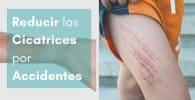 imagen destacada brazo y piernas con cicatrices por eliminar
