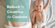 imagen madre con bebe reducir cicatriz cesarea