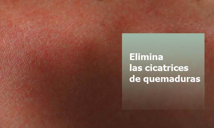 Cómo Eliminar Cicatrices de Quemaduras con Parches Cicatrizantes