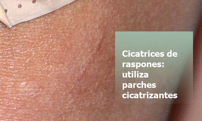 eliminar Cicatrices de raspones